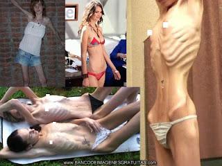 Bulimia y anorexia Imagen
