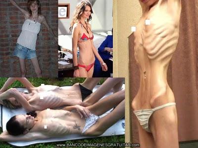 chicas con bulimia: