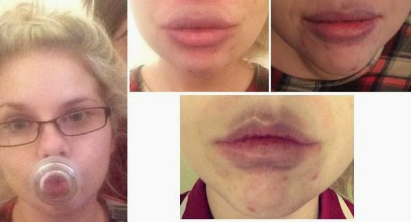 Bruised Lips caused by Viral Trend of Internet