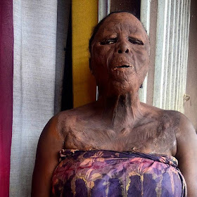 [PHOTOS] See How a Makeup Transformed this Woman into an Acid Burns Survivor