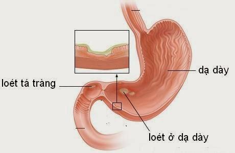 Cách phân biệt bệnh viêm loét dạ dày và viêm loét hành tá tràng