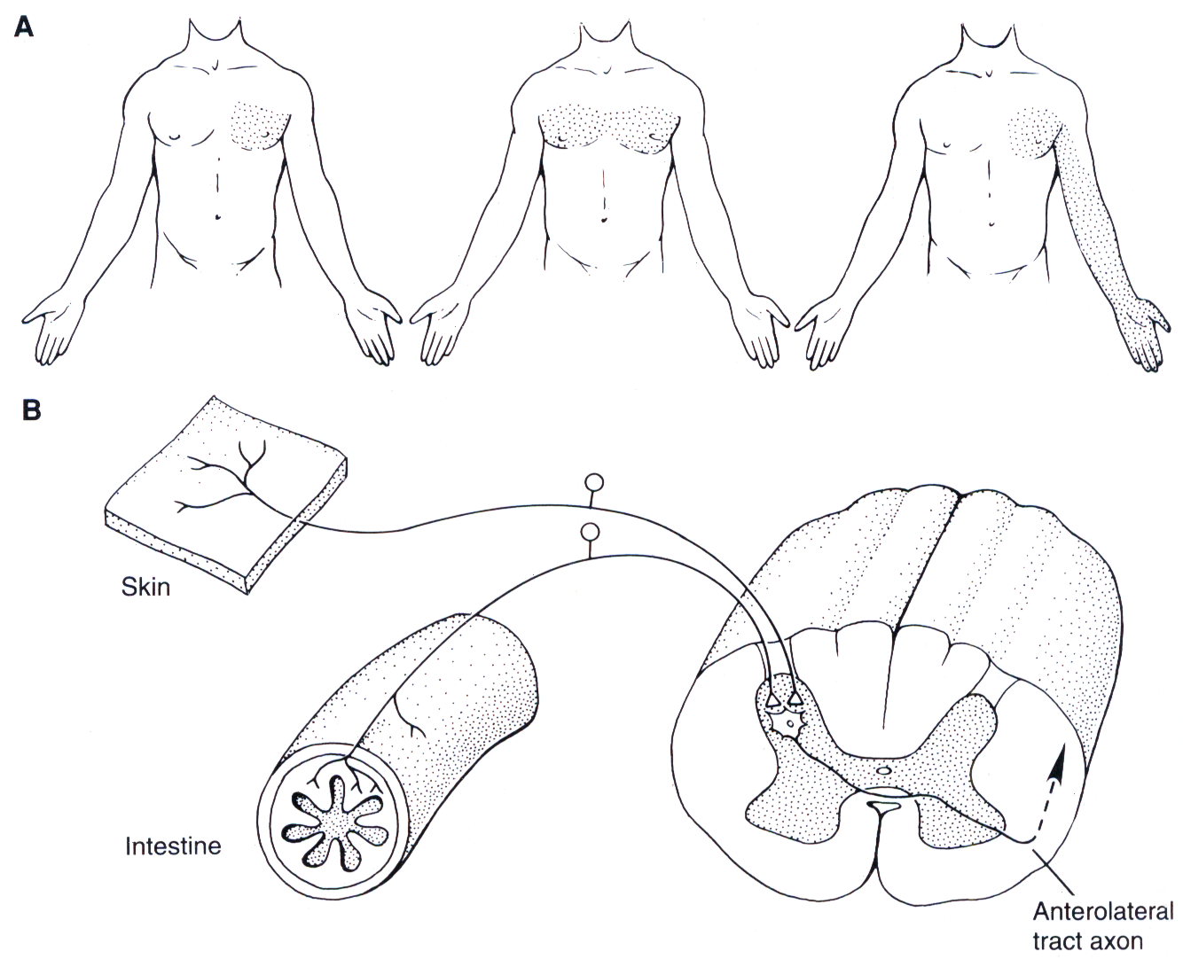Mecanismo del dolor referido