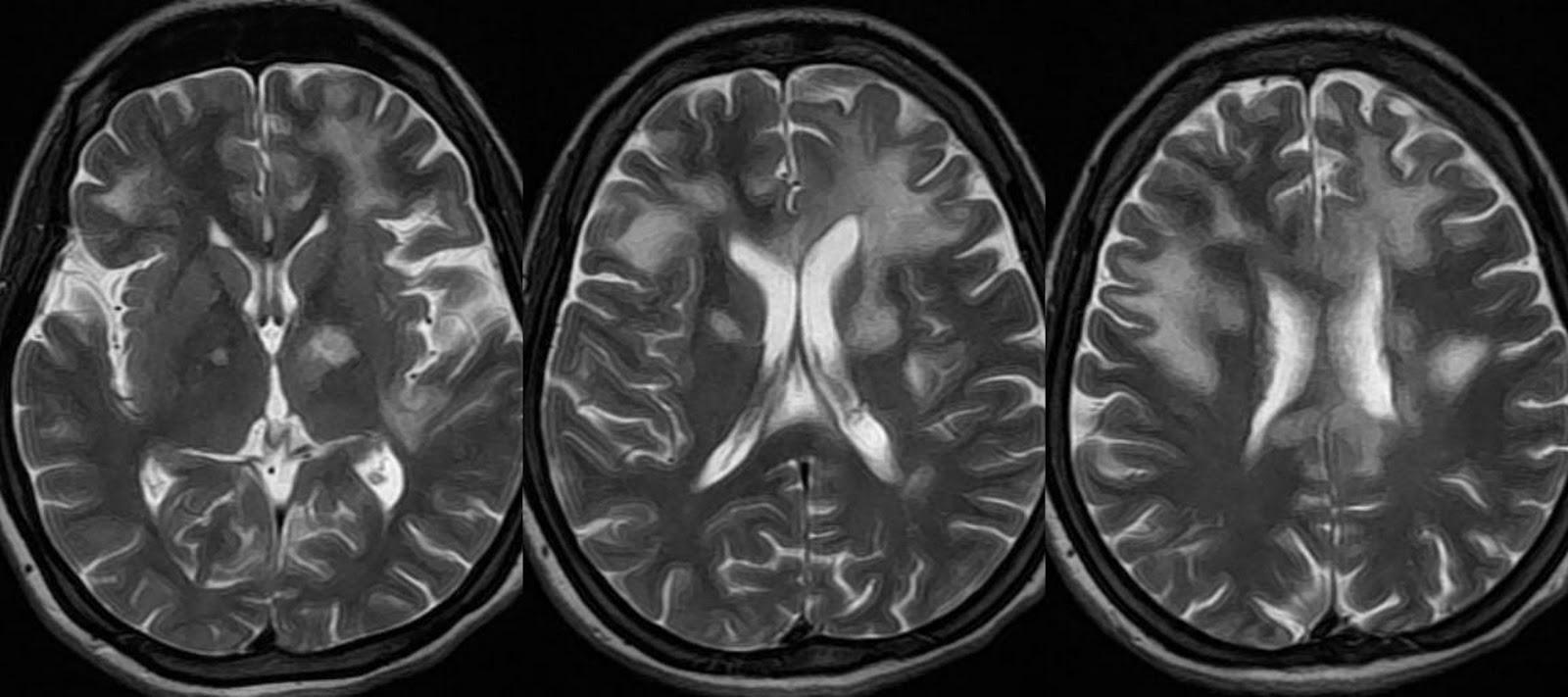 Dr Balaji Anvekar S Neuroradiology Cases Progressive