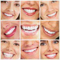Cara Memutihkan Gigi yang Baik dan Benar
