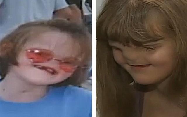 menina que nasceu sem nariz e olhos se prepara para a