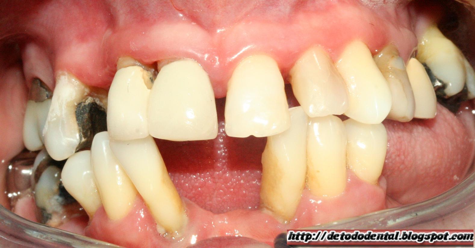 sintomas+enfermedad+periodontal.jpg