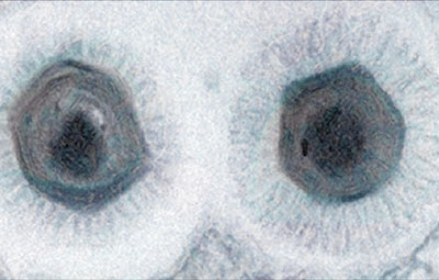 Megavirus Chilensis