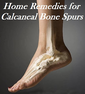 Home Remedies for Calcaneal Bone Spurs