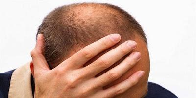mengatasi-rambut-rontok