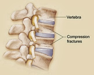 Compression fracture of the spine in children