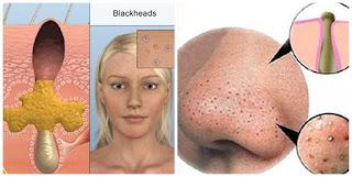 Điều trị mụn cám, đầu đen và trị sẹo mụn