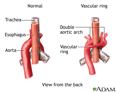 Vascular Ring - MedLine Plus