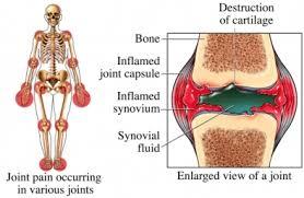 obat penyakit rematik atau nyeri sendi