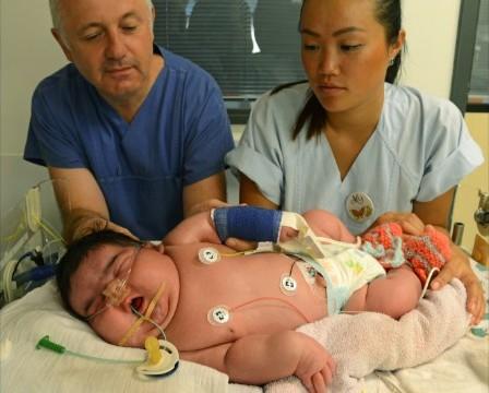 JASLEEN, Bayi Raksasa Lahir di Rumah Sakit Universitas Leipzig Jerman