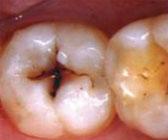 Randolph Dentist