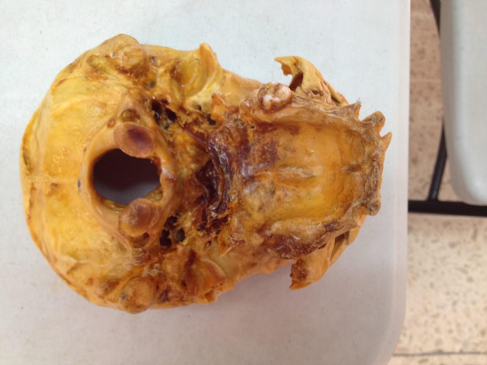 Anatomía Macrocópica: febrero 2014