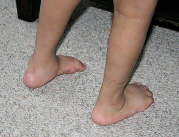 Club Foot Repair Adults