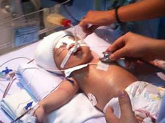Pisau 12 Inci Melekat Di Kepala Bayi 11 Hari, Ditikam Pesakit Hospital