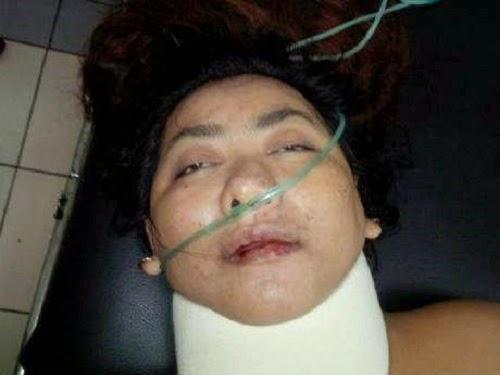 Suster gadungan penculik bayi dirawat di IGD (foto Istimewa/Detik)