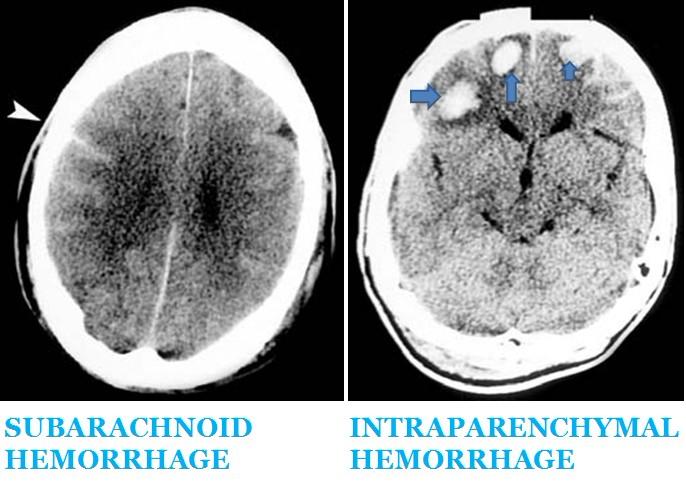 Intraventricular hemorrhage mri