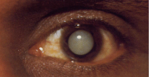 Cataracts, The Pictures, Images & Photos | Photobucket