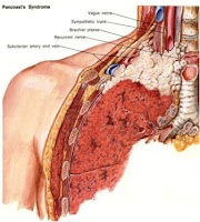 Image Result For Treatment Mesothelioma Lung