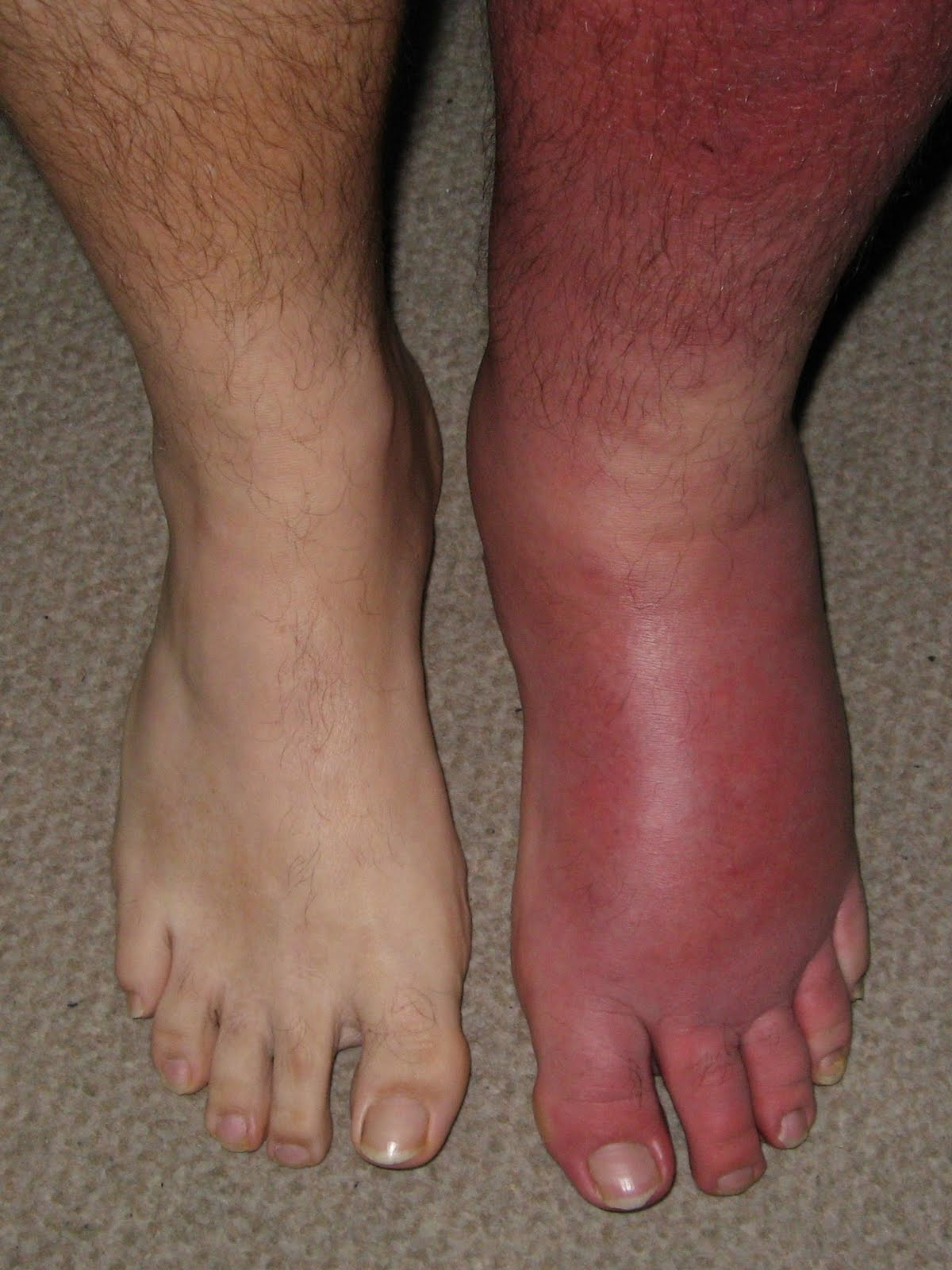 Causes of Red Swollen Feet & Ankles | LIVESTRONG.COM
