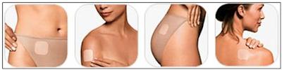 Lugares del cuerpo para adherir el parche anticonceptivo o transdérmico