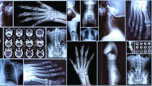 strategic benefits of teleradiology how to to select a