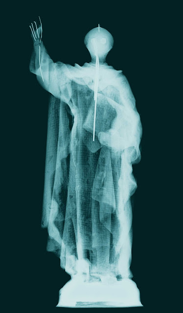 San Vicente, radiografia
