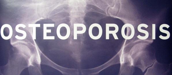 inilah 2 Gaya Hidup Bisa Menyebabkan Osteoporosis