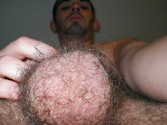 guys hairy ball