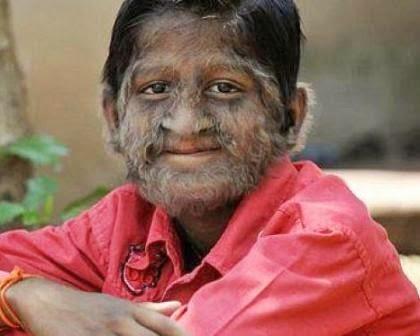 8 Penyakit Langka dan Aneh di Dunia