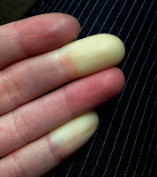 Raynaud's phenomenon - white and purple fingers