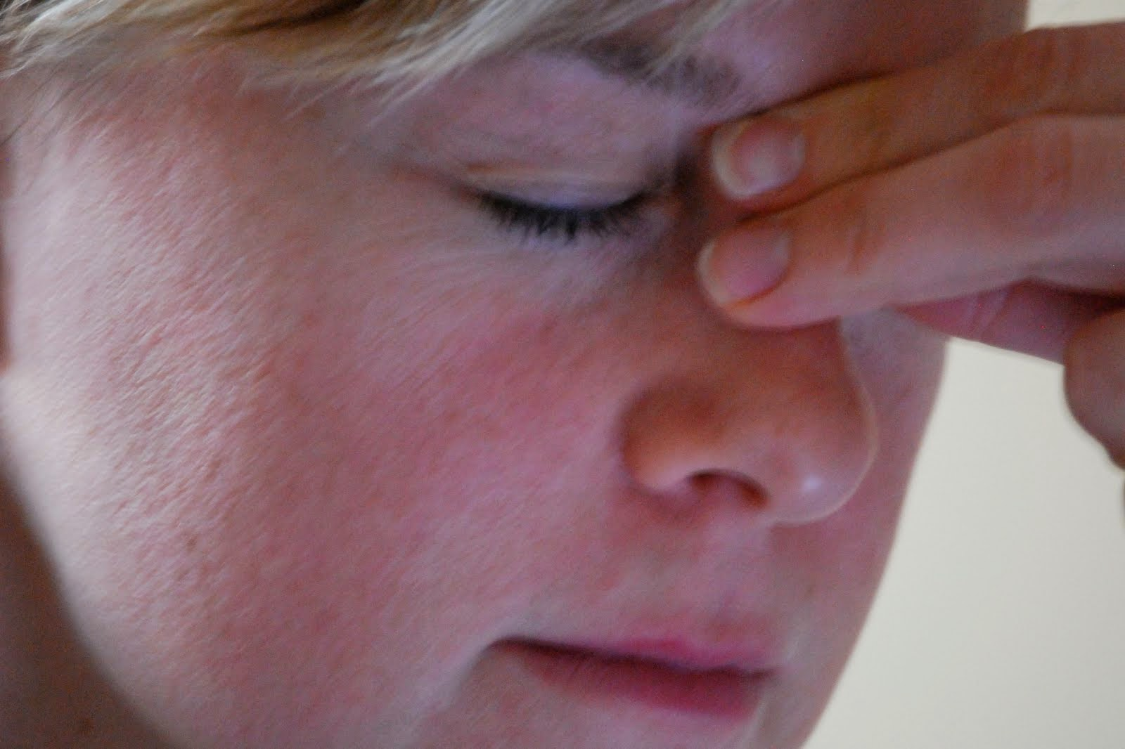 Obat Tradisional Penyakit Sinusitis Secara Alami