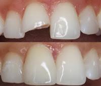عملية لحام الأسنان