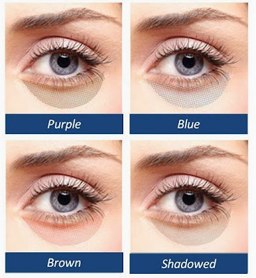 Which Kind Of Under Eye Circles Do You Have Cosmetic