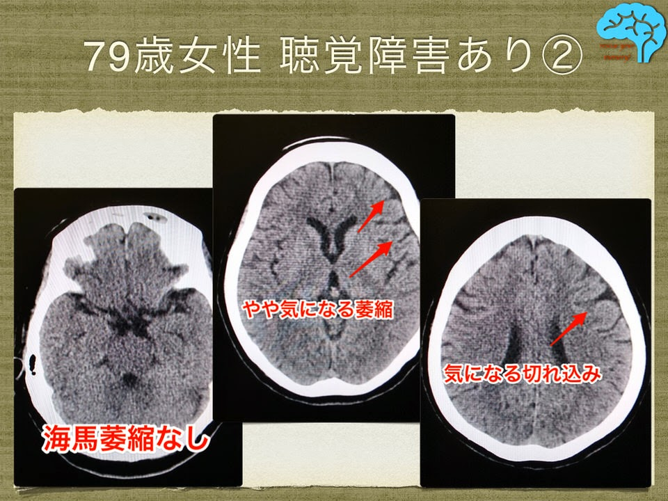 聴覚障害女性の頭部CT画像