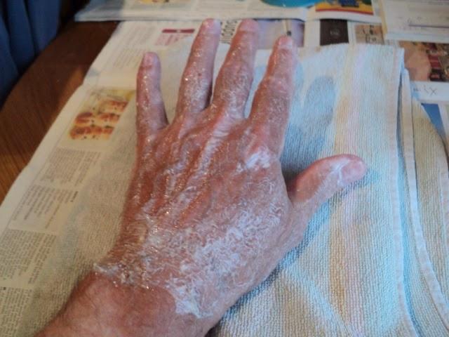 Ожог на коже от хлорки