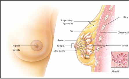 Cara mengobati kanker payudara dengan obat alami