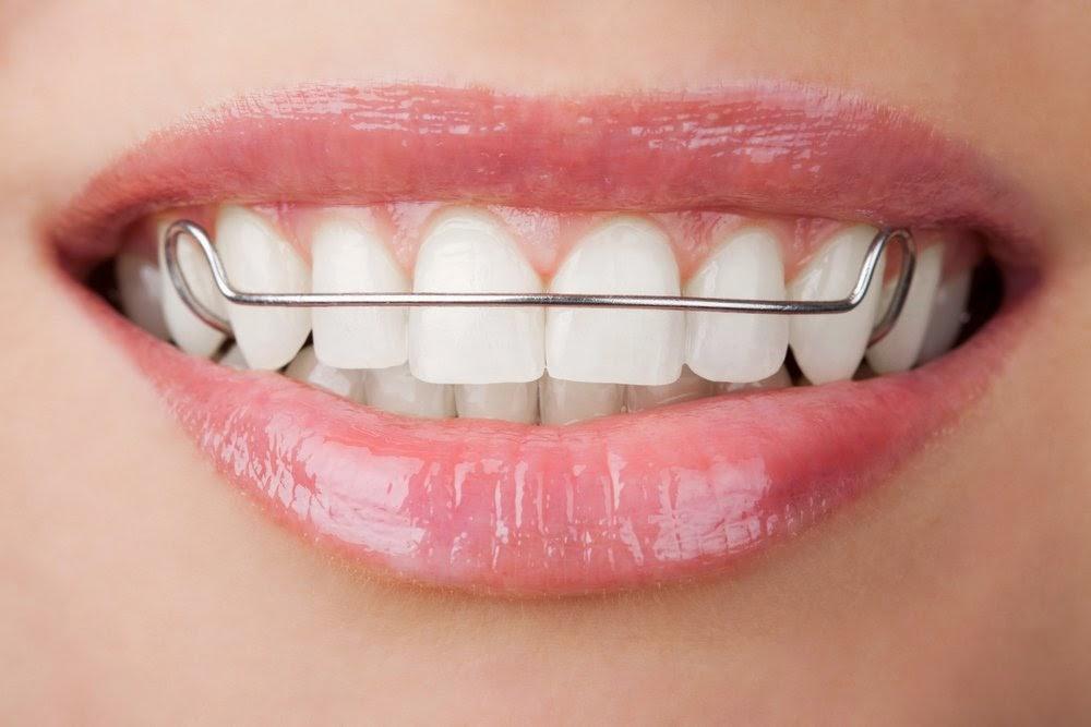 aparelho-movel-dentes - HIGIENIZAÇÃO DE APARELHO MÓVEL!