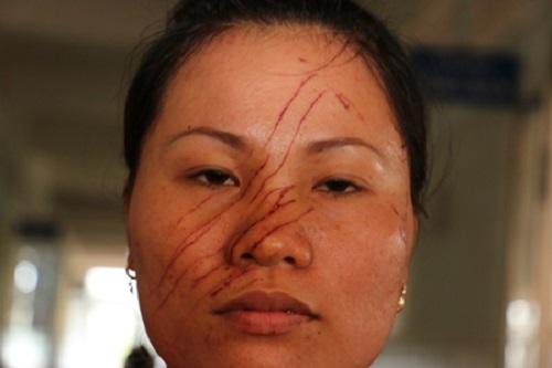 Gia Lai: 2 mẹ con bị hàng xóm rạch mặt, đánh nhập viện