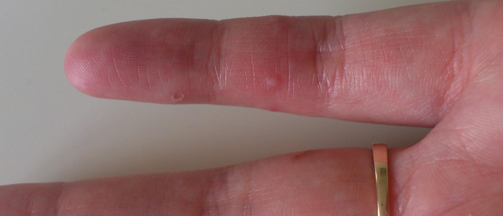 svamp på hænderne