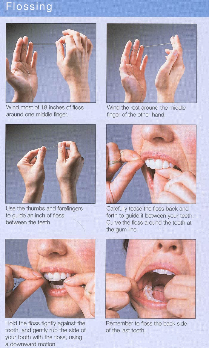 Adrian buca dds oral health news dental care news for What is flossing