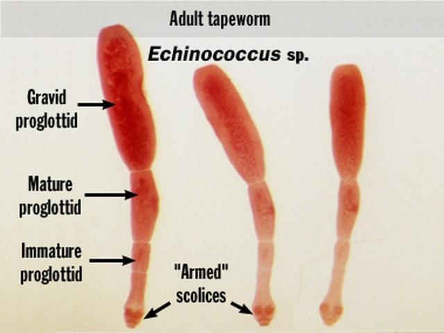 Medical Laboratory Technology - SOP: Echinococcus Granulosus