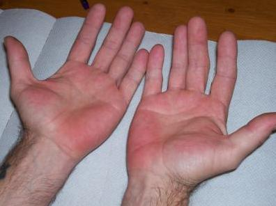 Red Hot Itchy Palms - Doctor insights on HealthTap