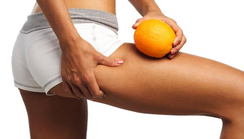piel de naranja generalizada