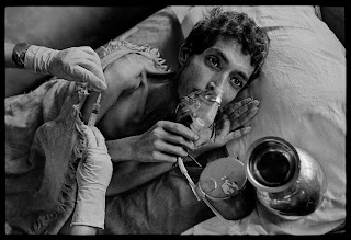 A man suffering from TB in Ireland in the mid-1900s
