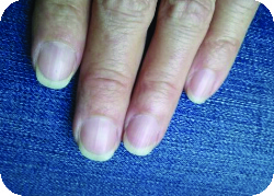 Did removing gels ruin your nails