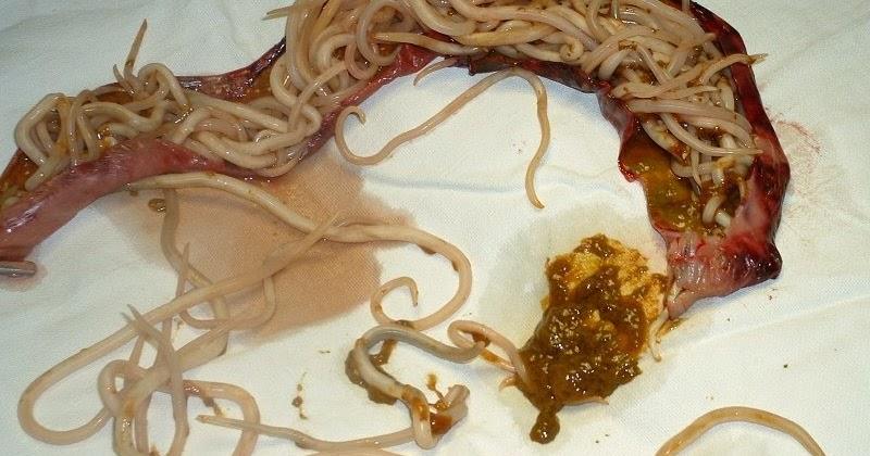 глисты паразиты в человеке